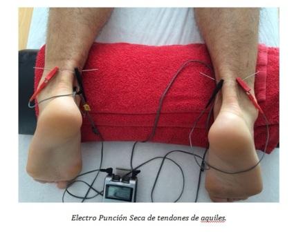 electro-puncion-seca-dos