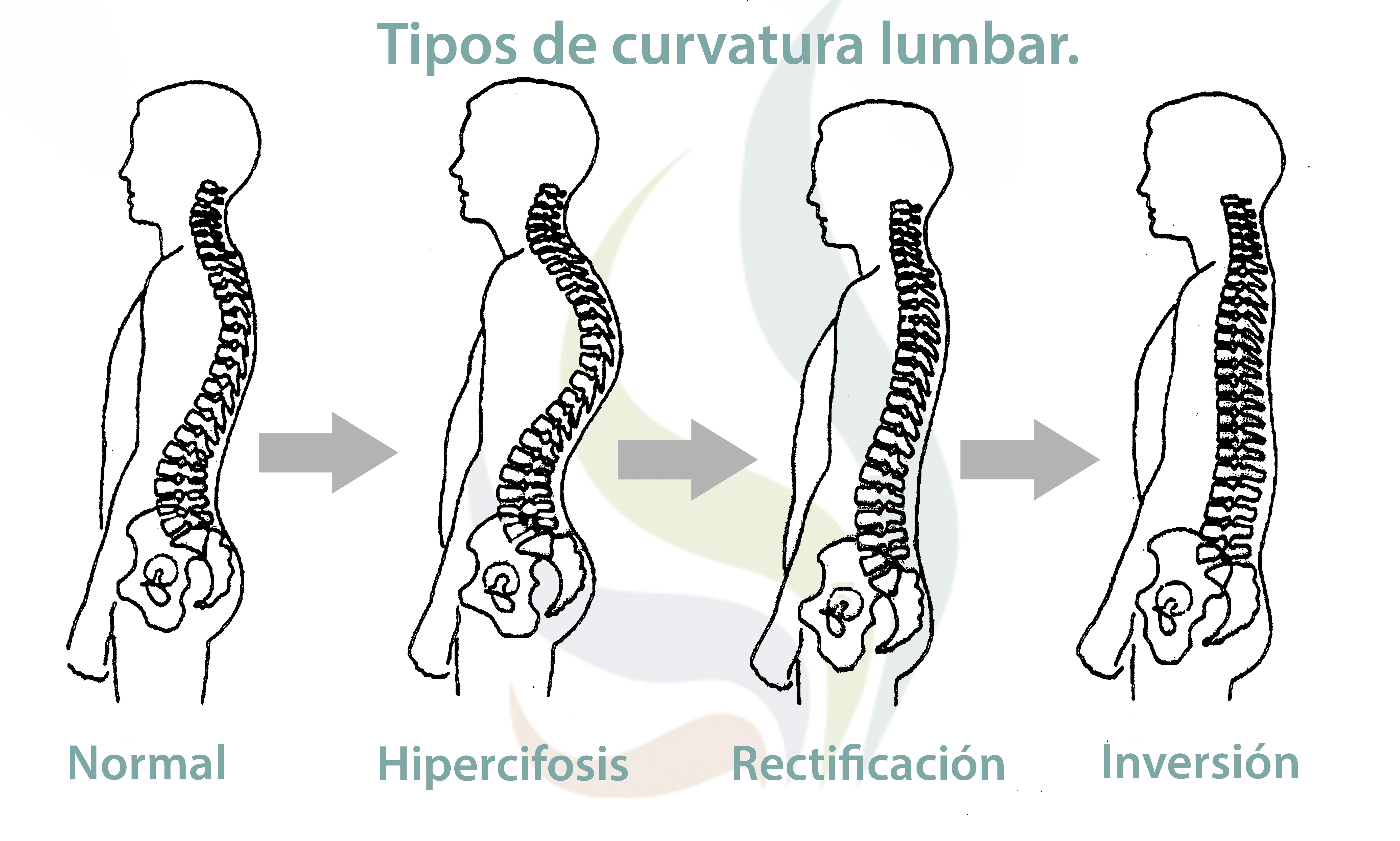 f20bec2af6cbc Lordosis cervical